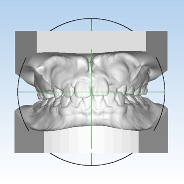 Digitized impressions of the teeth