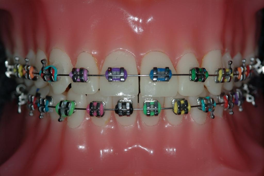 Types Of Braces Mko Mark Kum Orthodontist